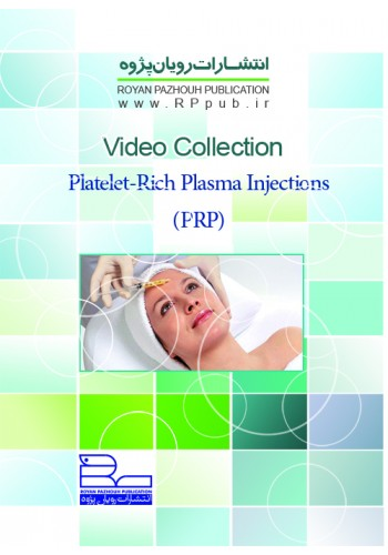 Platelet-Rich Plasma Injections (PRP)