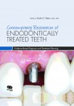 Contemporary Restoration ENDODONTICALLY TREATED TEETH Evidence Based Diagnosis and Treatment Planning 2013